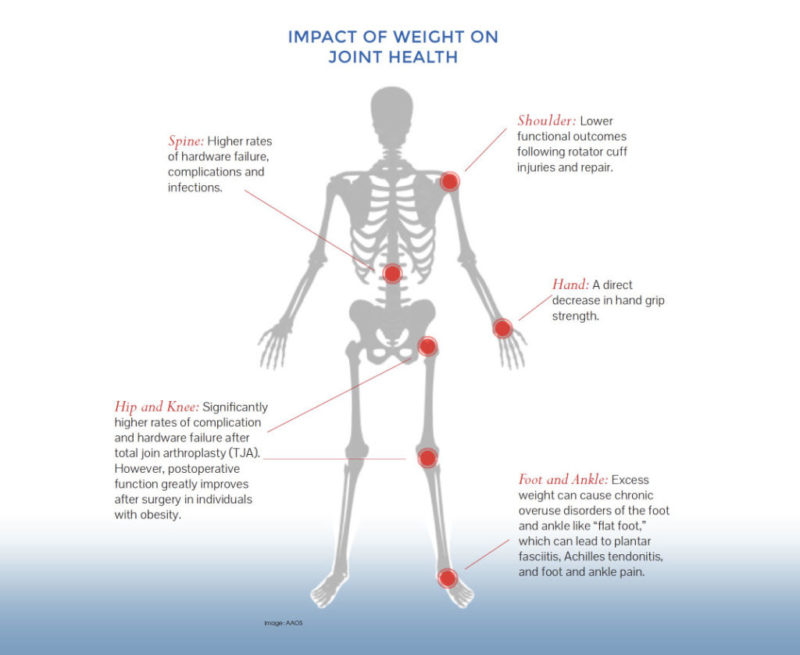 impact of weight on joint health